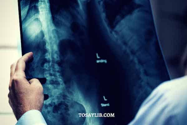 doctor check xray surgeon