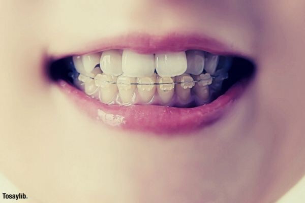 orthodontic teeth braces